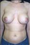24775-80148a_thumb