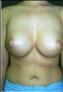 24777-80154a_thumb