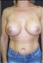 24779-80160a_thumb
