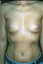 24780-80163b_thumb