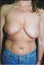24787-80181b_thumb