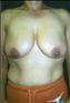 24789-80187b_thumb