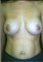 24766-80124a_thumb