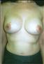 24776-80151a_thumb