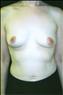 24776-80151b_thumb
