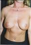24790-80194a_thumb