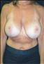 24791-80197a_thumb
