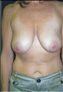 24791-80197b_thumb