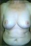 24794-80203a_thumb